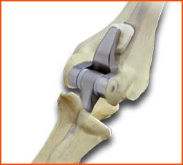 Эндопротезы локтевых суставов отращивание хряща сустава натуральным способом